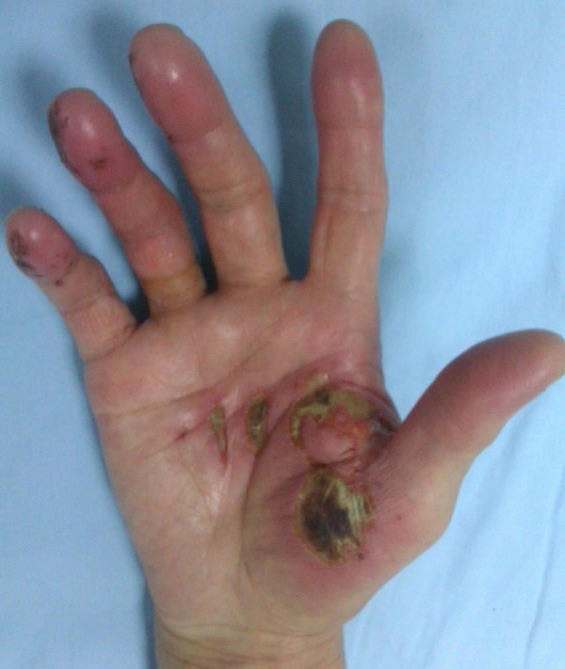 photo of right hand with deep chemical burns from sodium hydroxide on the palm at base of thumb